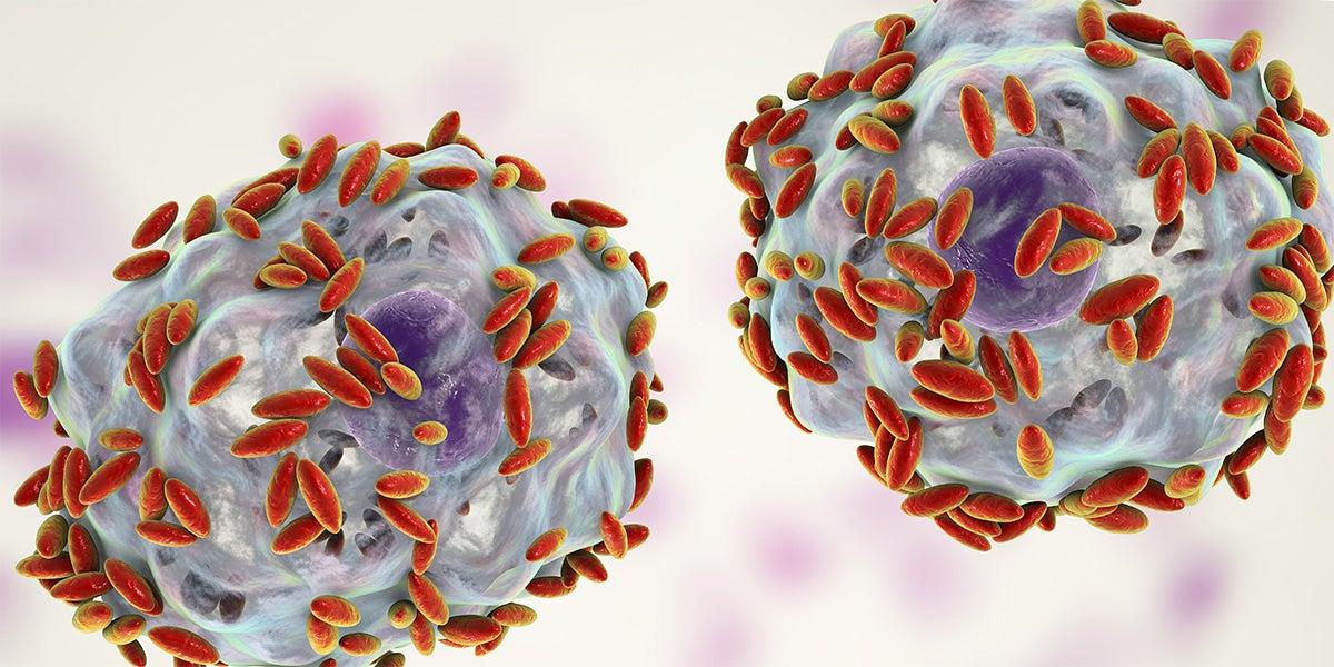 bakteriell vaginos orsak